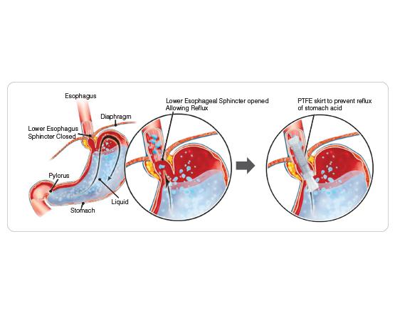 Niti-S™ DOUBLE™ Anti-Reflux Esophageal Stent