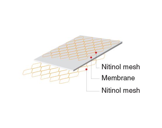 Niti-S COMVI Flare Pyloric/duodenal Stent