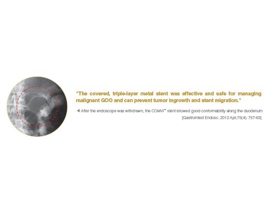 Niti-S COMVI Pyloric/duodenal Stent
