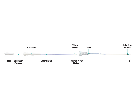 Niti-S Proximal Release Delivery System for Esophageal Stent