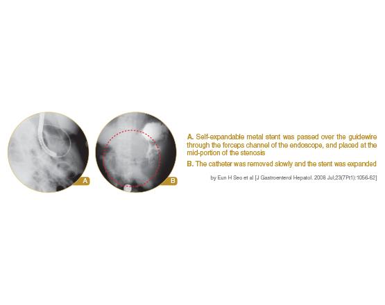 Niti-S S Pyloric-duodenal stent